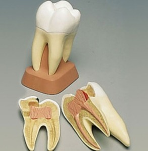 [3B]  VE298 / upper triple-root molar with caries,2-part/어금니,충치